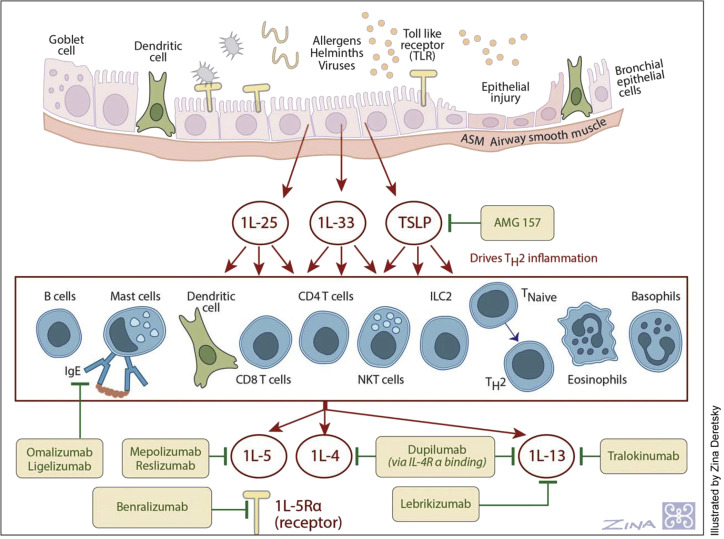 Changing Paradigms In The Treatment Of Severe Asthma The