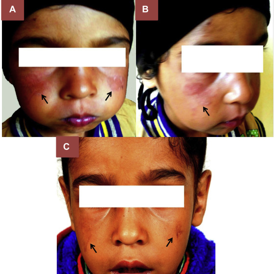 Malar Rash in a Child with Chronic Granulomatous Disease ...